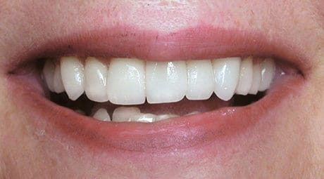 Dental Before and After Photos