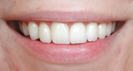Dental Before and After Photos - Carrollton Dental Solutions