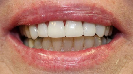 Dental before & after photos - Carrollton Dental Solutions