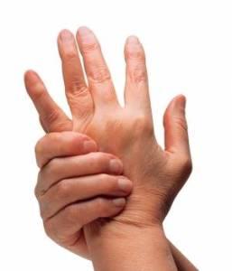 todo-sobre-la-artritis-reumatoide-300x350