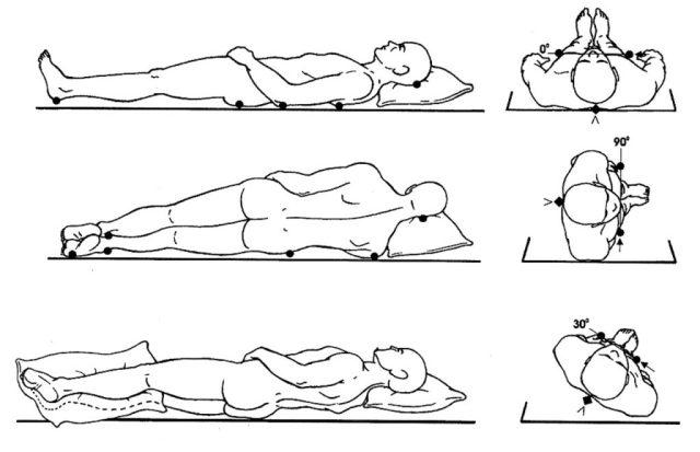 escaras ulcera de pressao (2)