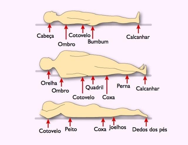 escaras ulcera de pressao (3)