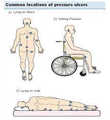 escaras ulcera de pressao (9)
