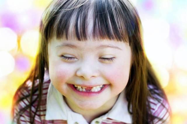 Menina com síndrome de Down