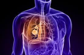 Tumore ai polmoni
