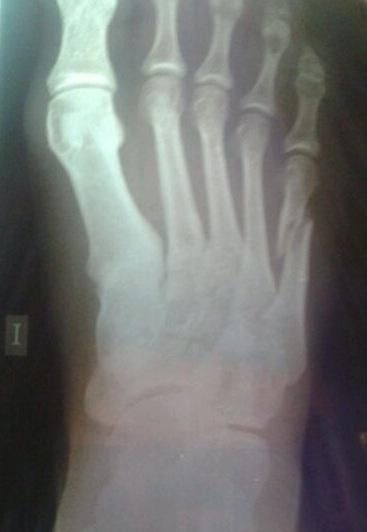 fractura del bailarín 6