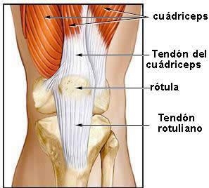 tendinopatía rotuliana tendón