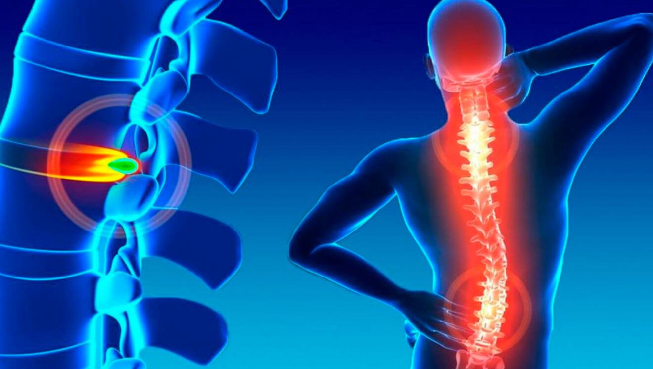 Hernia de disco – Causas y síntomas