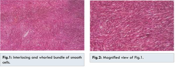 Right Pain Lower Abdomen Severe