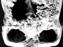 Historia de la medicina – Dermatología