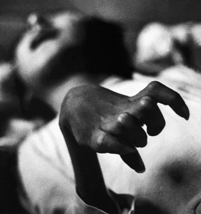 JAPAN. Minamata. Iwazo FUNABA's crippled hand, a victim of the disease. 1971.