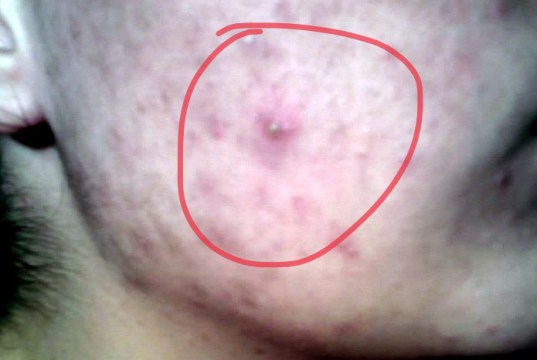 pimple (Acne)