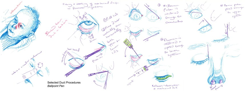 Ballpoint pen sketches I made while figuring out how to best visually represent a nasolacrimal duct probe.
