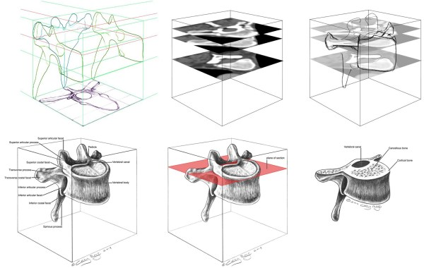 Depiction of a mid-thoracic vertebra inscribed in a cube.