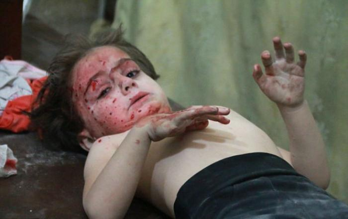 Wounded children aren
