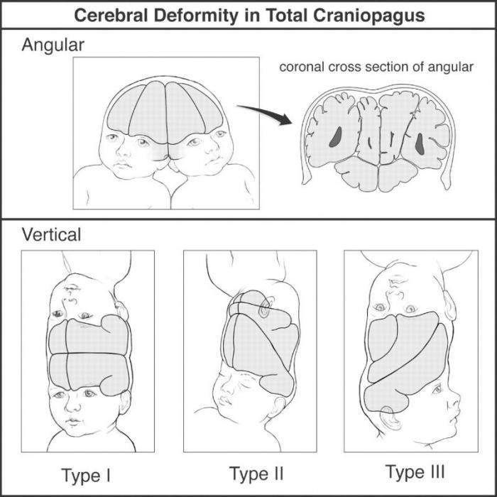 Cerebral Deformity in Total Craniopagus.
