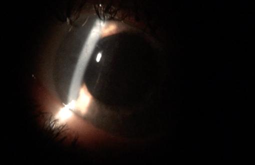 Eye Movie