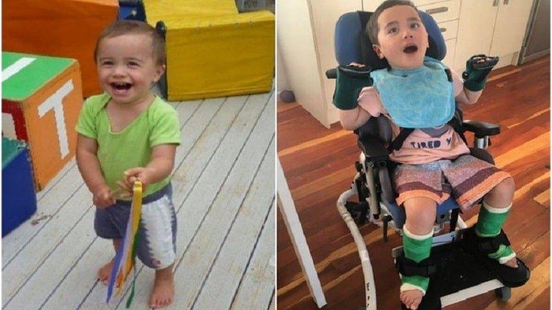 alerta garoto fica paraplegico apos engasgar com pedaco de maca