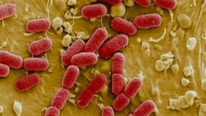 E. coli O157 is the same strain that killed seven people during the tainted water scandal in Walkerton, Ont., in 2000.