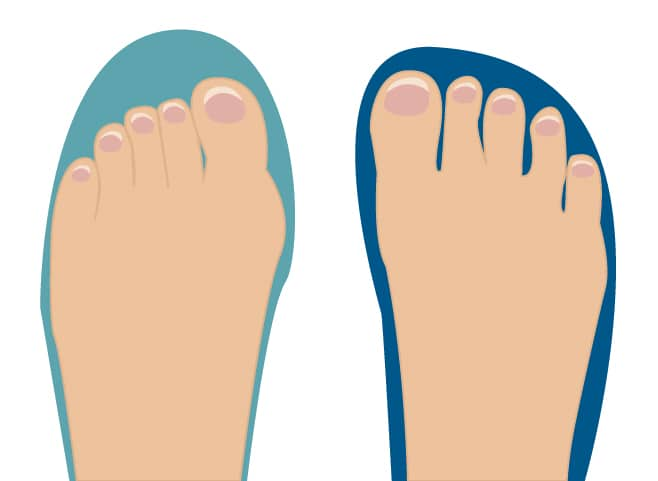 Is Your Toe Box Wide Enough The Simple Test For Running