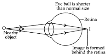 Human Eye and Colourful World Class 10 Important Questions with Answers Science Chapter 11, 5