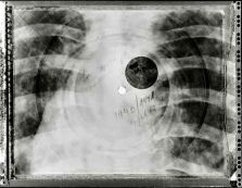 a rib cage on x-ray turned into a bone record