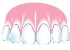 A fixed bridge (or fixed partial denture)