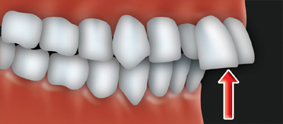 An overjet occurs when the upper front teeth protrude
