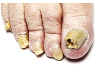 Before And After Pictures Of Pedicures Designs Sad Image With Tears Streaming