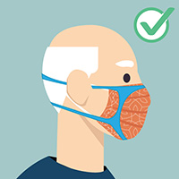 A cloth mask can be combined with a fitter or brace