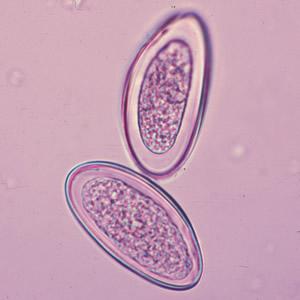 telur Oxyuris vermicularis