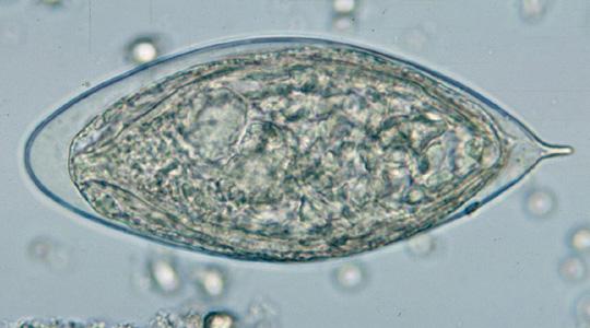 telur Schistosoma haematobium