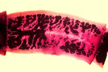 proglotid cacing pita babi