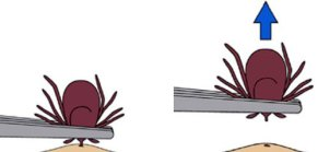 clipart style image showing the proper removal of a tick using a pair of tweezers