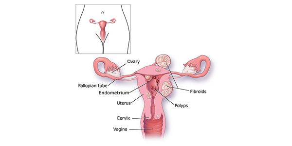 Image result for causes of heavy periods