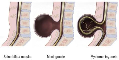 Types of spina bifida: Spina bifida occulta, meningocele, myelomeningocele