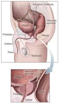 Gráfico: ilustración médica que muestra la ubicación de la próstata