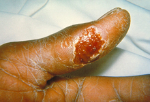 Ulcer on the thumb of a patient with tularemia