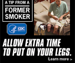 A Tip from a Former Smoker: Allow extra time to put on your legs.