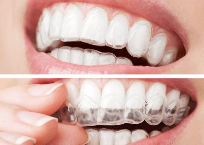 Invisalign Dentist in Gurgaon