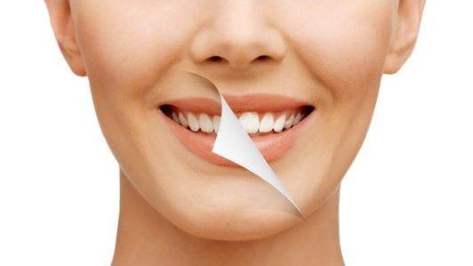 Teeth Whitening Gurgaon