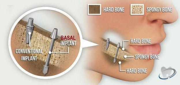 Basal vs Crestal implants