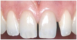Midline Diastema Before Treatment