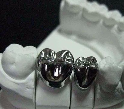 Titanium Metal Crown