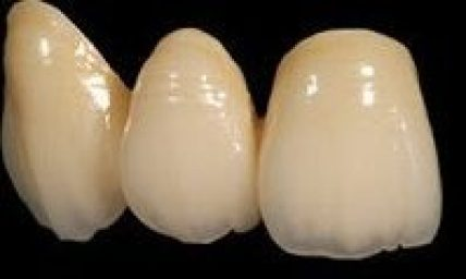 Premium Lava Translucent Crown