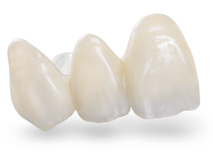 Translucent Zirconia Crown Cost