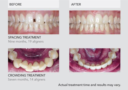 clear aligner cost