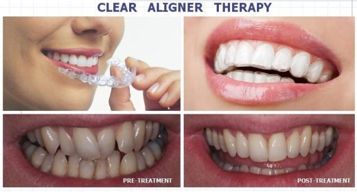 Clear Aligners Cost in Gurgaon