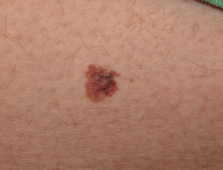 melanoma risk