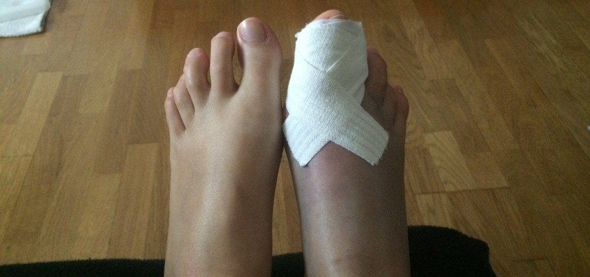 double-fracture-gros-orteil